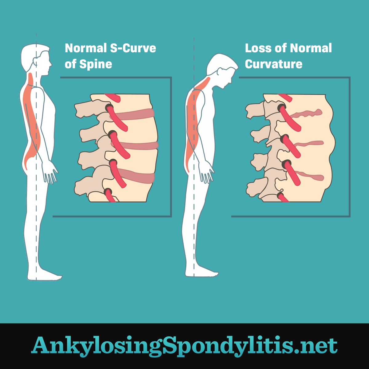 illustration of curvature loss in spine